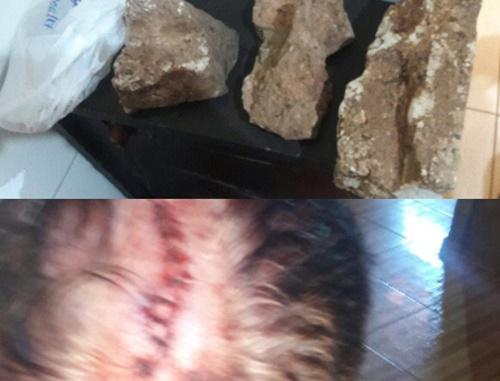 Idoso é agredido apedradas na cabeça por assaltante durante roubo em Corrente