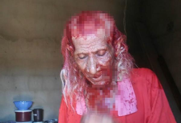 Idoso de 88 anos morre após ser agredido durante assalto, bisneto é suspeito